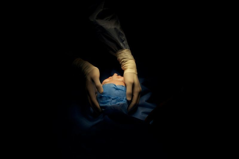 franc-gerard-surgery-chirurgie-photography- - 16
